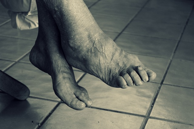 Wkładki ortopedyczne sposobem na walkę z ostrogą piętową